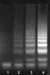 Bst dna聚合酶LAMP实验