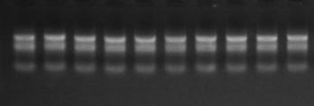 TRIzol LS Reagent提取RNA