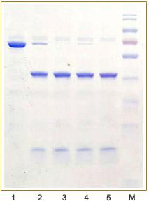 pcold-sumo对照蛋白SUMO酶切